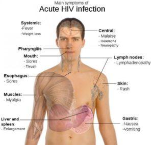Aids Full form & Symptoms